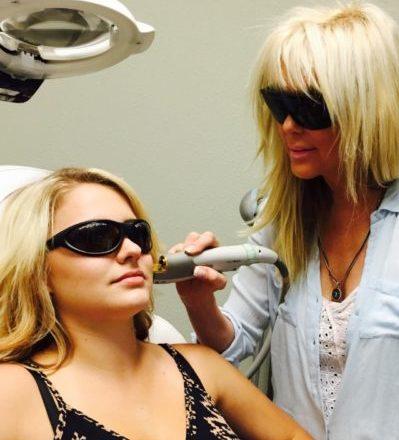 Laser Genesis treatment - Tamra Bedford, Cosmetic RN - San Ramon, CA