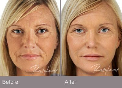 restylane cosmetic dermal filler