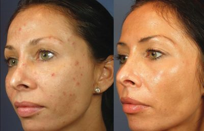 Before and After chemical peels - VI Peel
